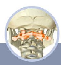 Kopfschmerzen, Probleme mit dem Atlas Wirbel